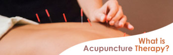 what is acupunture theraphy