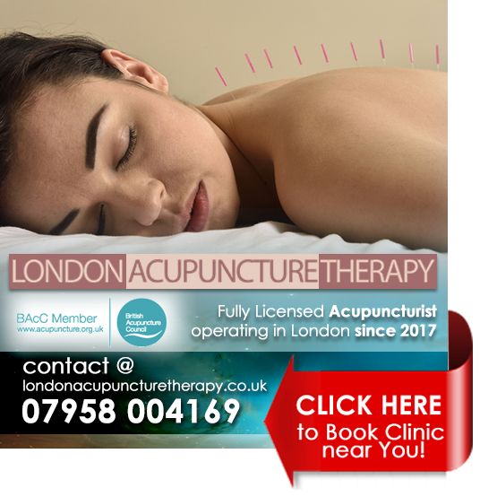 london acupuncture